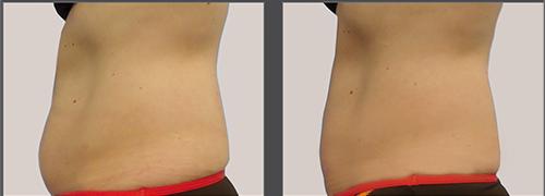 המסת שומן, טיפול המסת שומן בקור - מוניקה פכטר, קוסמטיקאית פרא רפואית