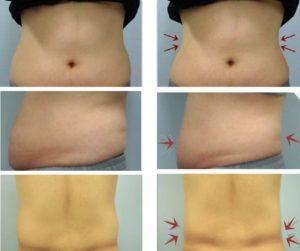 המסת שומן, טיפול המסת שומן בקור - קריוליפוליזיס - מוניקה פכטר