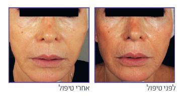 טכנולוגית חידוש עור מובילה בטיפולי פנים (Fractional)