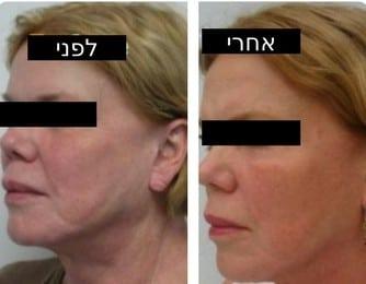 מילוי פנים ללא הזרקה! מתיחת פנים ללא ניתוח! - טיפולי אנטי אייג'ינג חדשניים