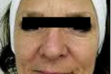 מתיחת פנים ללא ניתוח – טיפולי אנטי אייג'ינג חדשניים ללא הזרקות
