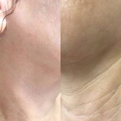 אסתטיקת פנים ללא ניתוח