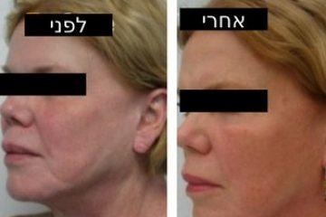 מיצוק עור הפנים
