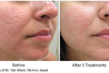 מהפכה טכנולוגית בחידוש העור