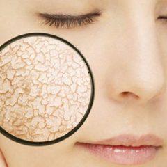מוצרי פרוביוטיקה לעור רגיש