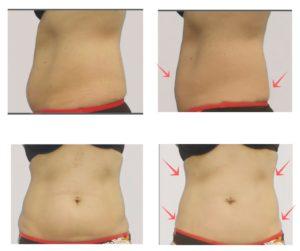 המסת שומן, טיפול המסת שומן בקור - מוניקה פכטר