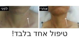 תמונות לפני ואחרי מילוי פנים ללא הזרקה