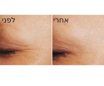 מיצוק עור הפנים - תמונות לפני ואחרי