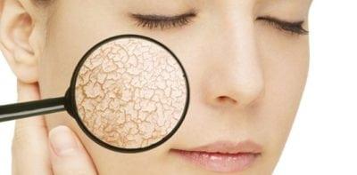 אבחון חלקי העור - שיטת הפסיפס - מוניקה פכטר
