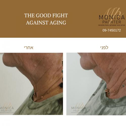 מוניקה פכטר- טיפול צוואר (3)