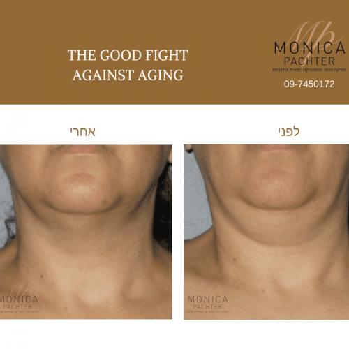 מוניקה פכטר- טיפול צוואר (5)