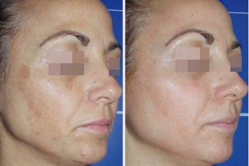 ליהנות מתיחת פנים ללא ניתוח