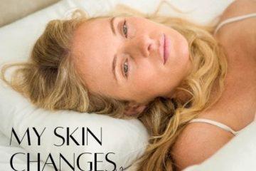 הגורמים לשינויים במצב העור