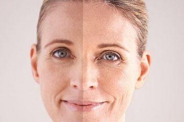 היפר פיגמנטציה בעור – כל מה שצריך לדעת