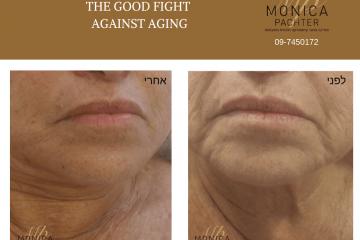 2019: כל השיטות החדשות למיצוק ומתיחת העור ללא התערבות כירורגית