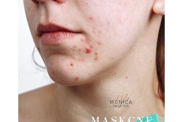 MASKCNE  – אקנה מתחת למסכה