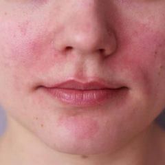 הקשר בין מחלה אוטואימונית והעור